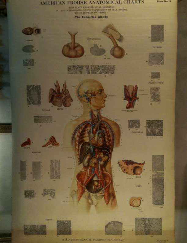American Frohse Antique Medical School Chart